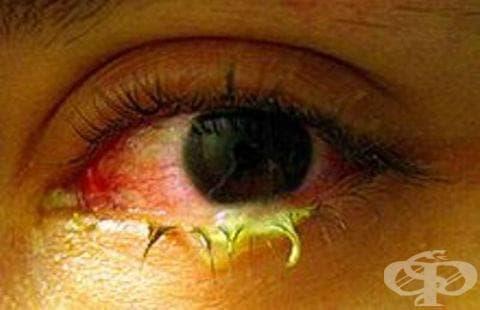 Други менингококови инфекции МКБ A39.8 - изображение