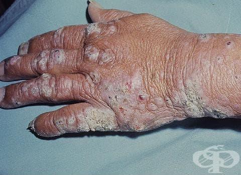 Други мононевропатии при болести, класифицирани другаде МКБ G59.8 - изображение