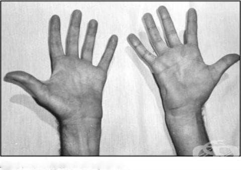 Други първични мускулни увреждания МКБ G71.8 - изображение