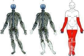 Други полиневропатии МКБ G62 - изображение