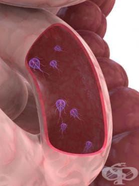 Други протозойни чревни болести МКБ A07 - изображение