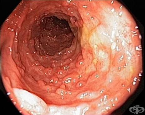 Други разновидности на болестта на Crohn МКБ K50.8 - изображение