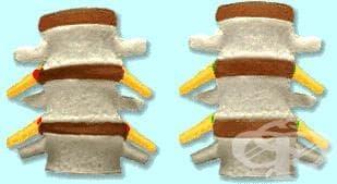 Други рецидивиращи сублуксации на гръбначния стълб МКБ M43.5 - изображение