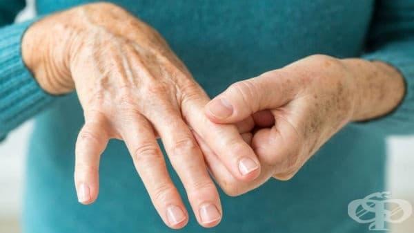 Други серопозитивни ревматоидни артрити МКБ M05.8 - изображение