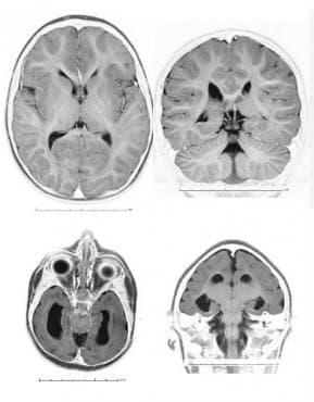 Други редукционни деформации на мозъка МКБ Q04.3 - изображение