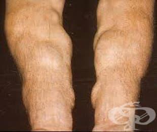 Други уточнени разстройства на обмяната на веществата МКБ E88.8 - изображение