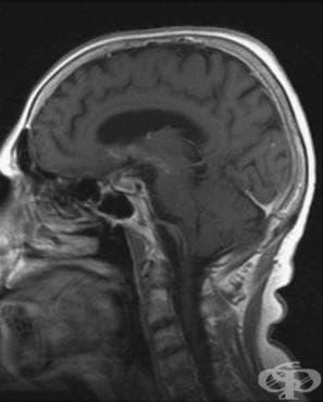 Други уточнени увреждания на главния мозък МКБ G93.8 - изображение