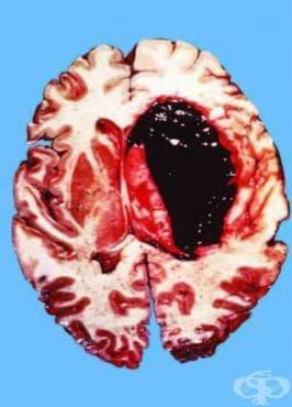 Други увреждания на нервната система след медицински процедури МКБ G97.8 - изображение