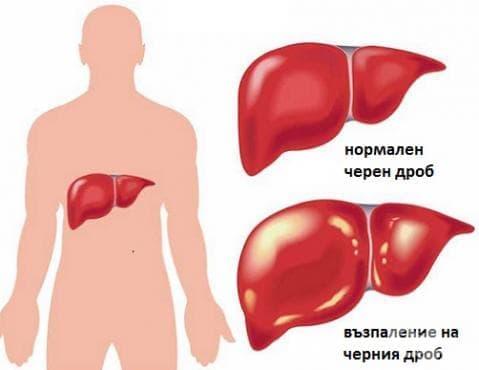Други възпалителни болести на черния дроб МКБ K75 - изображение