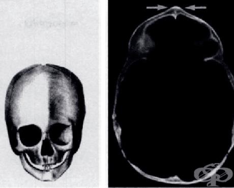 Други уточнени вродени аномалии на костите на черепа и лицето МКБ Q75.8 - изображение