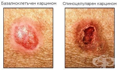 Други злокачествени новообразувания на кожата МКБ C44 - изображение