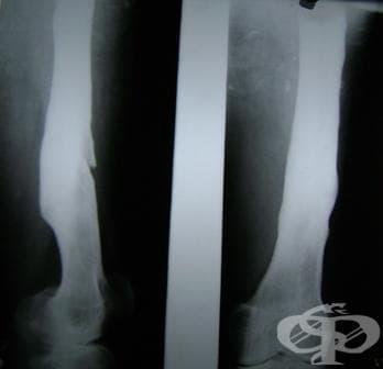 Други форми на остър остеомиелит МКБ M86.1 - изображение