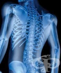 Други уточнени нарушения в плътността и структурата на костта МКБ M85.8 - изображение