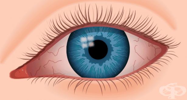Други очни прояви при недоимък на витамин A МКБ E50.7 - изображение