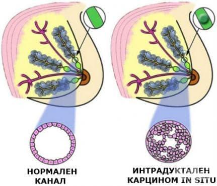 Интрадуктален карцином in situ МКБ D05.1 - изображение