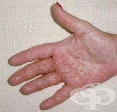 Дисхидроза [помфоликс] МКБ L30.1 - изображение