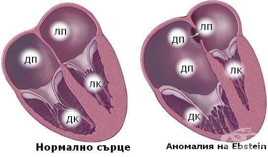 Аномалия на Ebstein МКБ Q22.5 - изображение