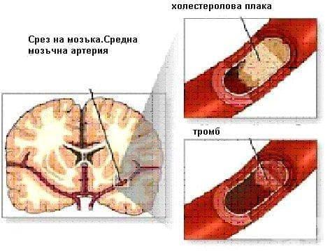 Мозъчносъдови болести МКБ I60-I69 - изображение
