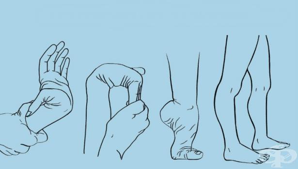 Синдром на Ehlers-Danlos МКБ Q79.6 - изображение