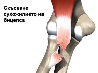 Други увреждания на костно-мускулната система и съединителната тъкан МКБ M95-M99 - изображение