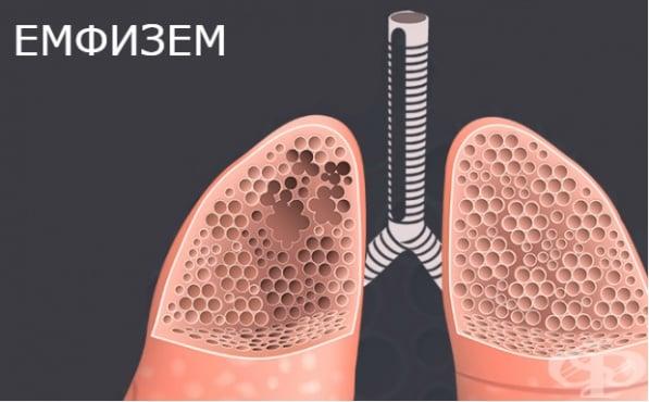 Емфизем МКБ J43 - изображение