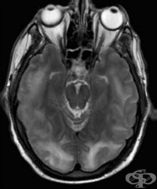 Енцефалопатия, неуточнена МКБ G93.4 - изображение