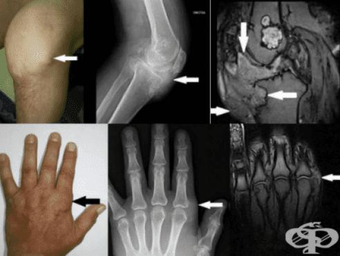 Енхондроматоза МКБ Q78.4 - изображение