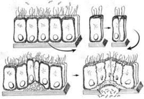 Ентероинвазивна инфекция, предизвикана от Escherichia coli МКБ A04.2 - изображение