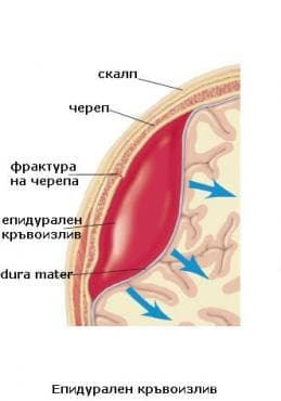 Епидурален кръвоизлив МКБ S06.4 - изображение