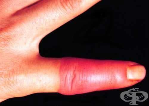 Еризипелоид, неуточнен МКБ A26.9 - изображение