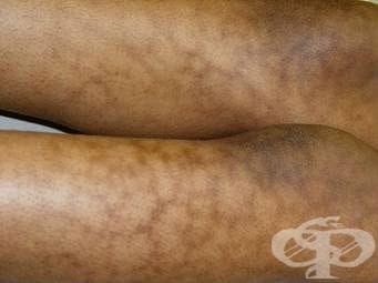 Еритем от изгаряне [dermatitis ab igne] МКБ L59.0 - изображение