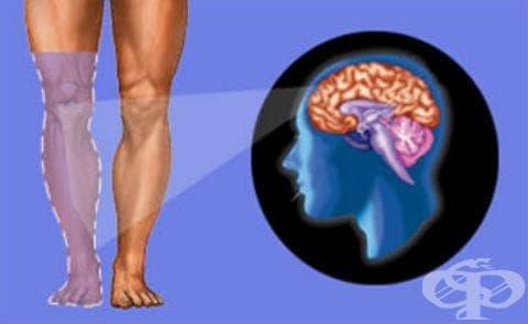 Фантомен синдром на крайник с болка МКБ G54.6 - изображение