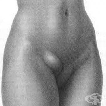 Феморална херния МКБ K41 - изображение