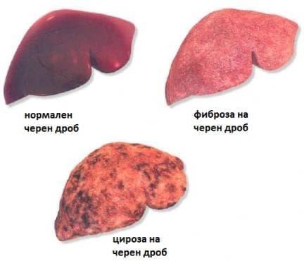 Фиброза и цироза на черния дроб МКБ K74 - изображение