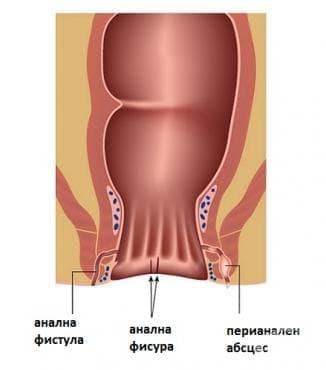Фисура и фистула на ануса и ректума МКБ K60 - изображение
