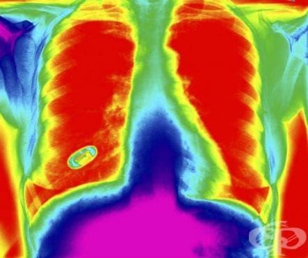 Чуждо тяло в дихателните пътища МКБ T17 - изображение
