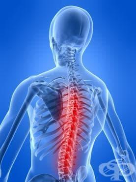 Фрактура на гръбначния стълб от пренапрежение МКБ M48.4 - изображение