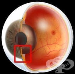 Глаукома МКБ H40-H42 - изображение