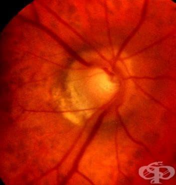 Глаукома при други болести, класифицирани другаде МКБ H42.8 - изображение