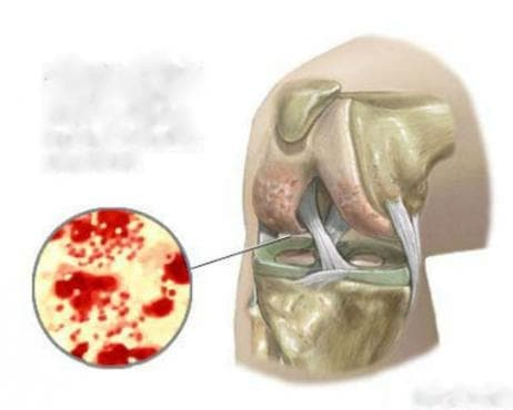 Гонококова инфекция на костно-мускулната система МКБ A54.4 - изображение