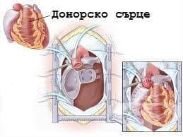 Отмиране и отхвърляне на трансплантат на сърце МКБ T86.2 - изображение