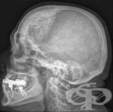 Хиперостоза на черепа МКБ M85.2 - изображение