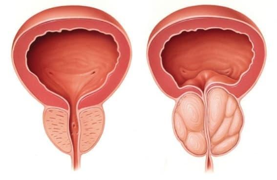 Хиперплазия на простатата МКБ N40 - изображение