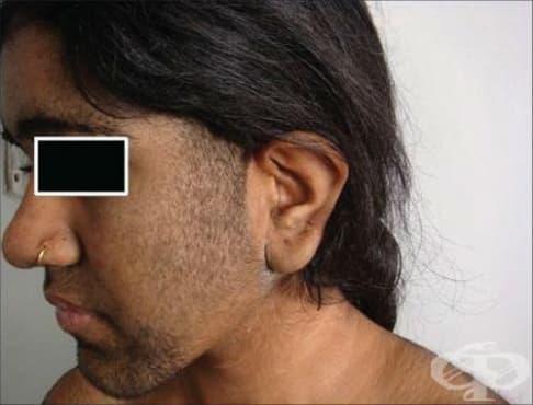 Хипертрихоза МКБ L68 - изображение