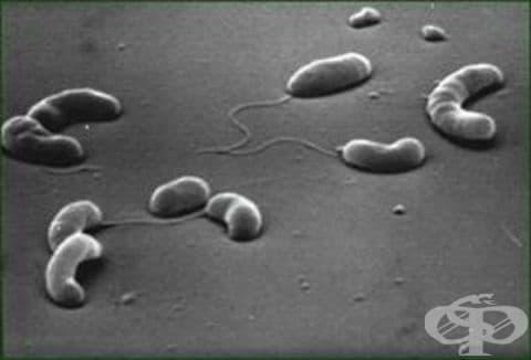 Холера, предизвикана от холерен вибрион 01, биовар cholerae МКБ A00.0 - изображение