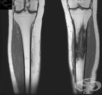 Хроничен остеомиелит с фистула МКБ M86.4 - изображение