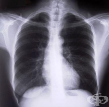 Хронична обструктивна белодробна болест, неуточнена МКБ J44.9 - изображение