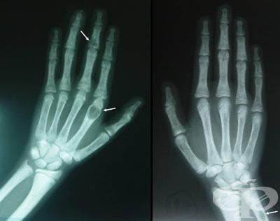 Хиперпаратиреоидизъм и други  разстройства на паращитовидните  жлези МКБ E21 - изображение