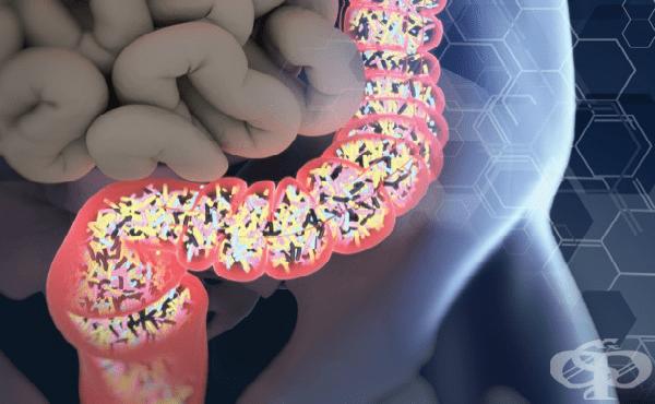 Ентероколит, предизвикан от Clostridium difficile МКБ A04.7 - изображение