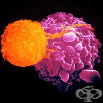 Имунодефицит, свързан с други значителни дефекти МКБ D82 - изображение